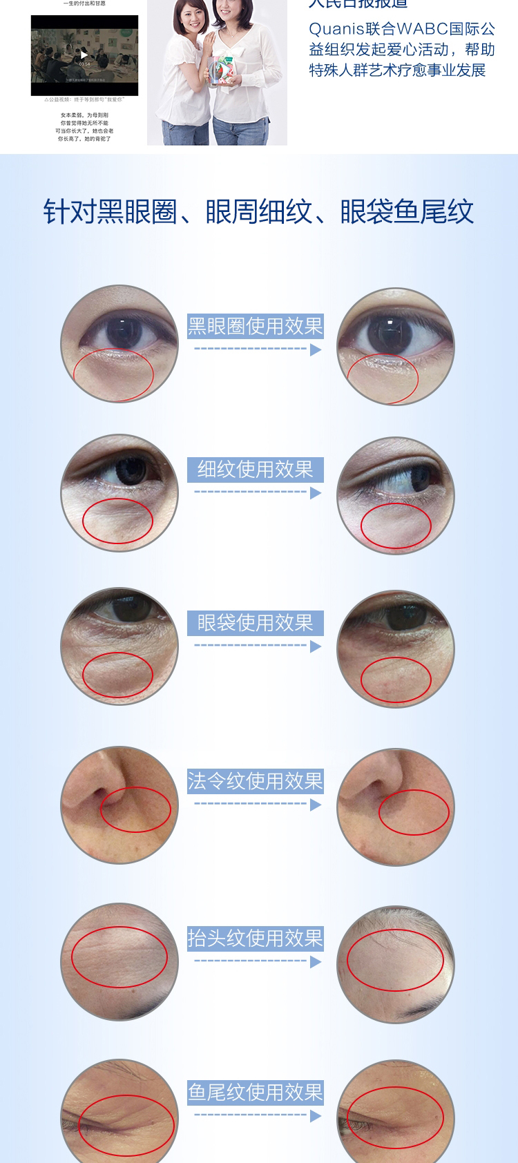 【逆龄黑科技】Quanis克奥妮斯玻尿酸微针眼贴1300针(6对装)淡化黑眼圈