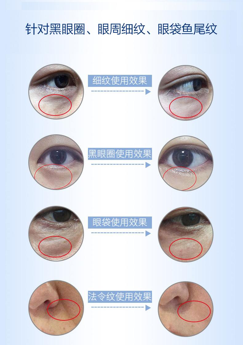 【逆龄黑科技】Quanis/克奥妮斯玻尿酸微针眼贴2600针(1对装)淡化黑眼圈眼袋细纹日本进口
